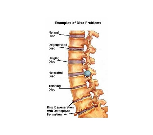 slide 1_spinal stenosis slideshow_Example of Disc Problems