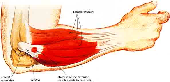 tennis_elbow1